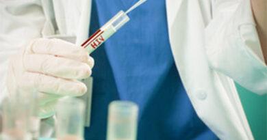Plataforma de conteúdos em streaming identifica problemas e aponta soluções para o controlo epidemiológico do VIH