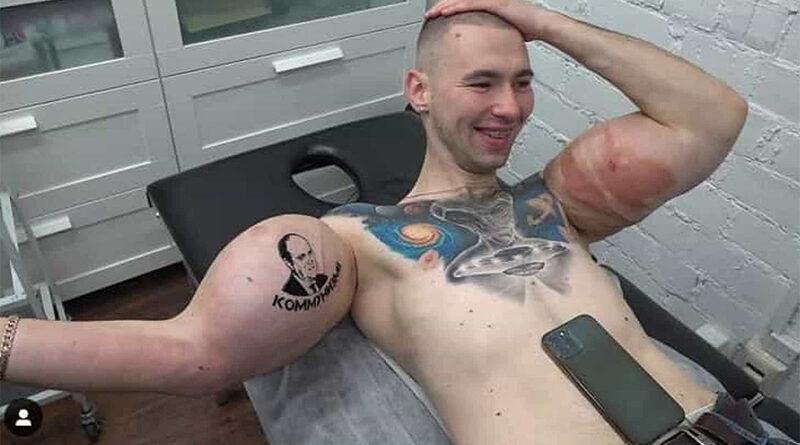 Popeye russo corre risco de amputação após braço 'explodir' durante luta